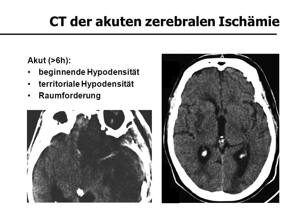 CT der akuten zerebralen Ischämie