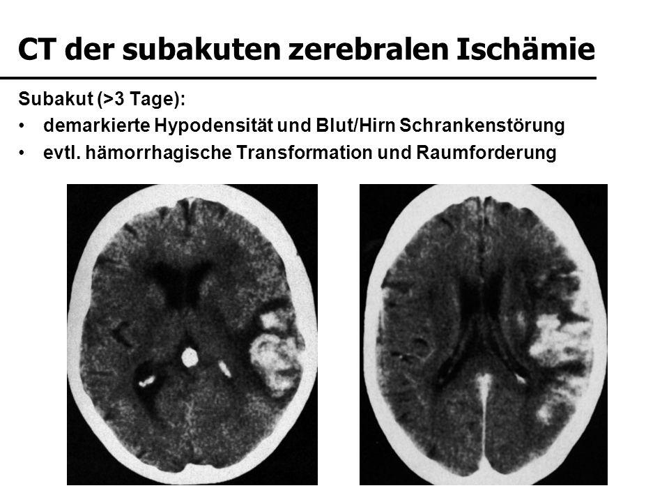 CT der subakuten zerebralen Ischämie
