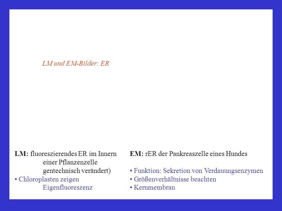 LM und EM-Bilder: ER LM: fluoreszierendes ER im Innern einer Pflanzenzelle gentechnisch verändert)