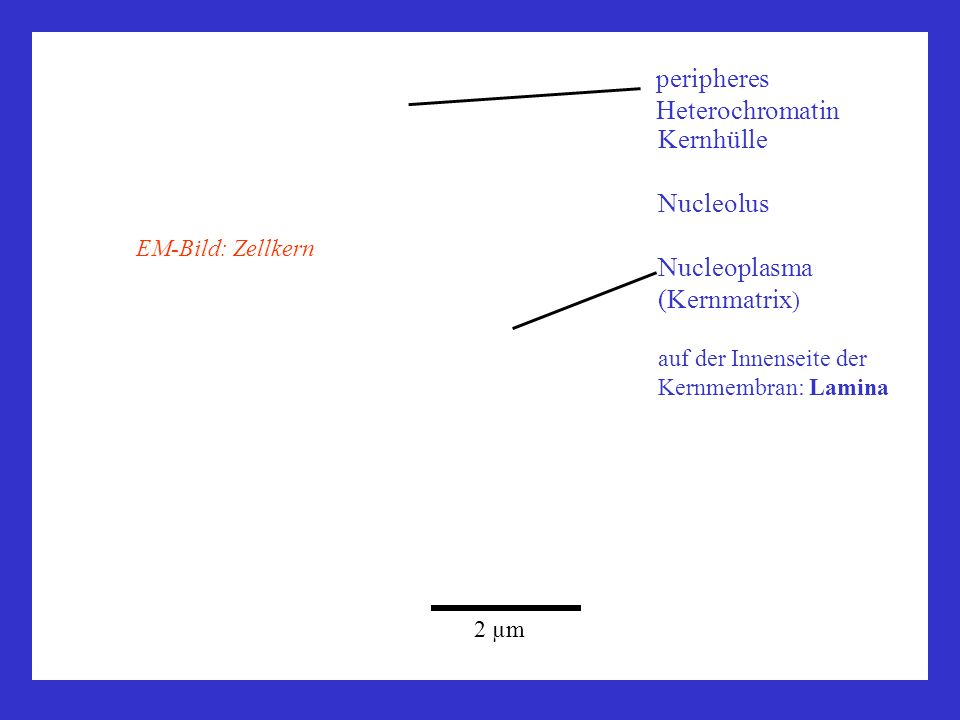 peripheres Heterochromatin
