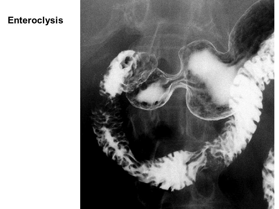 Enteroclysis