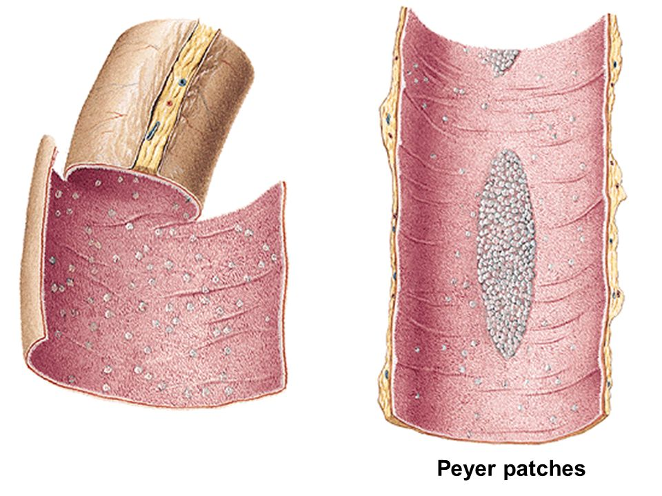 Peyer patches