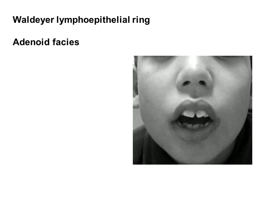 Waldeyer lymphoepithelial ring