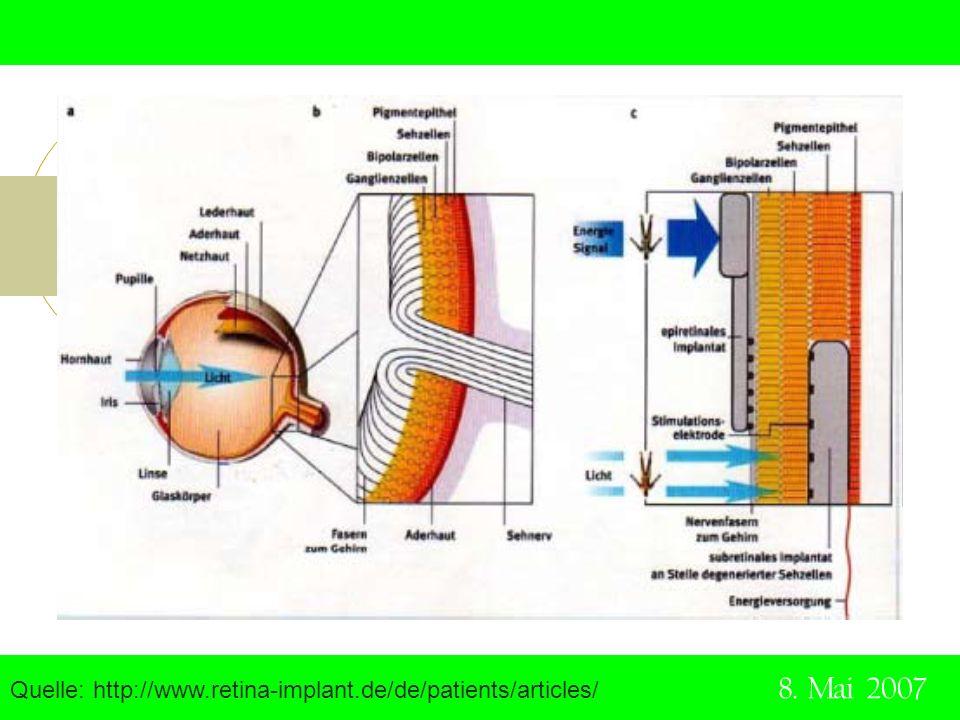 Quelle: http://www.retina-implant.de/de/patients/articles/ 8. Mai 2007