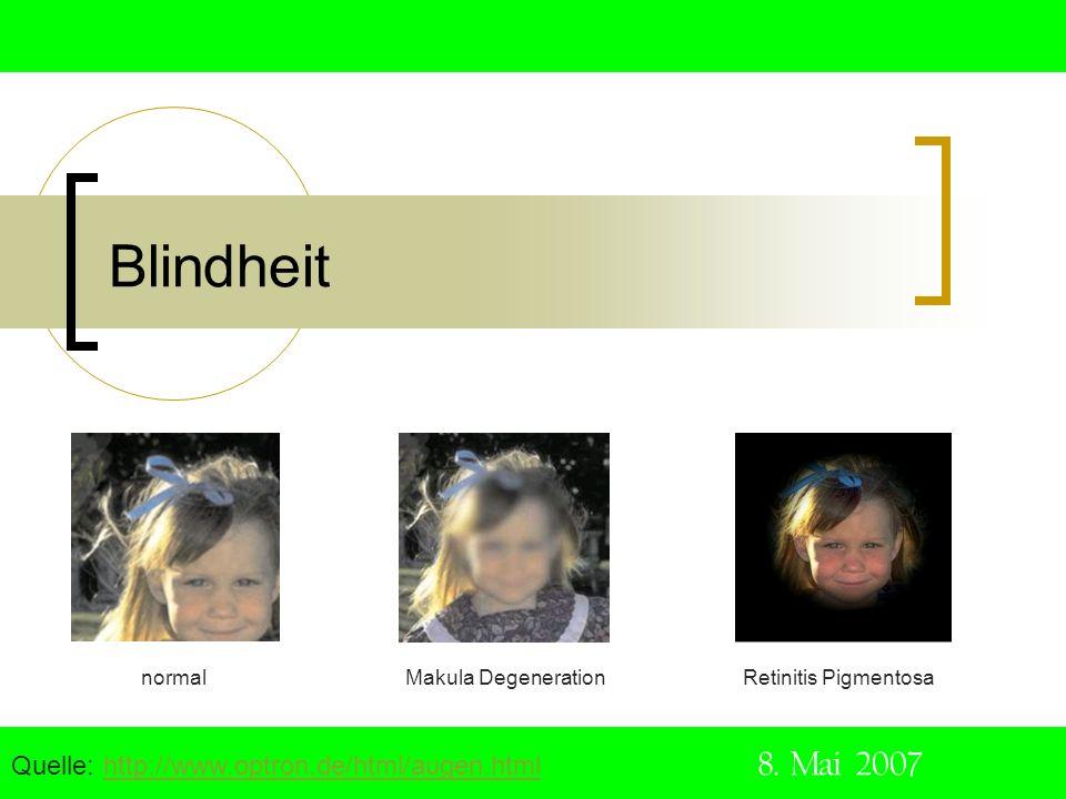 Blindheit Quelle: http://www.optron.de/html/augen.html 8. Mai 2007