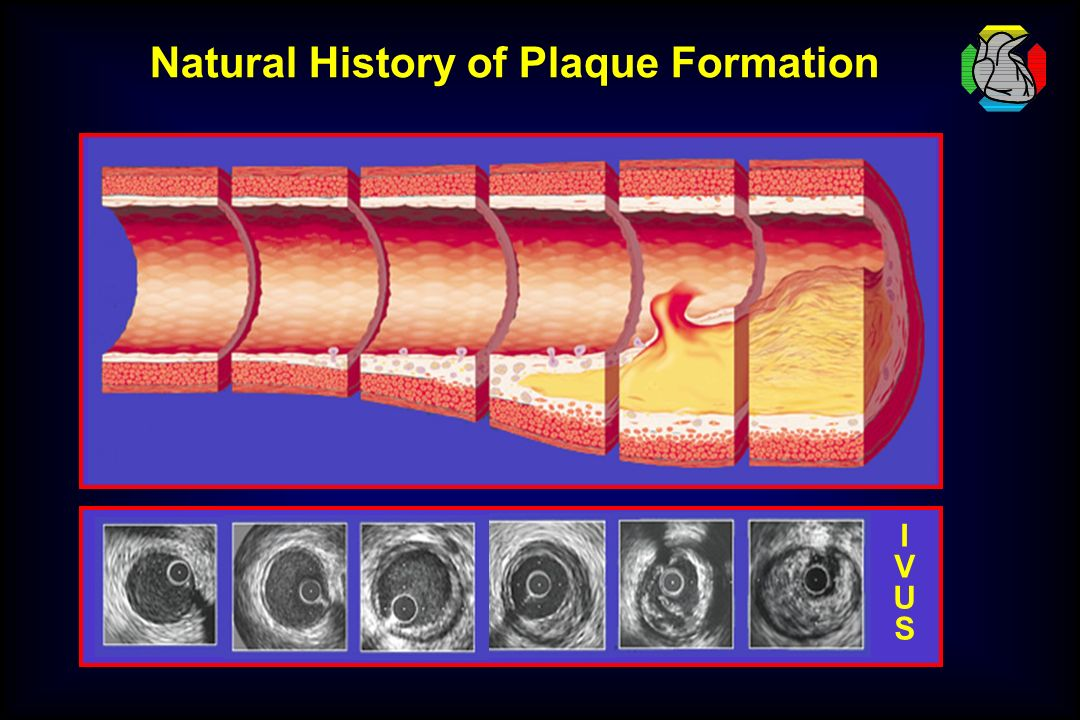 Natural History of Plaque Formation
