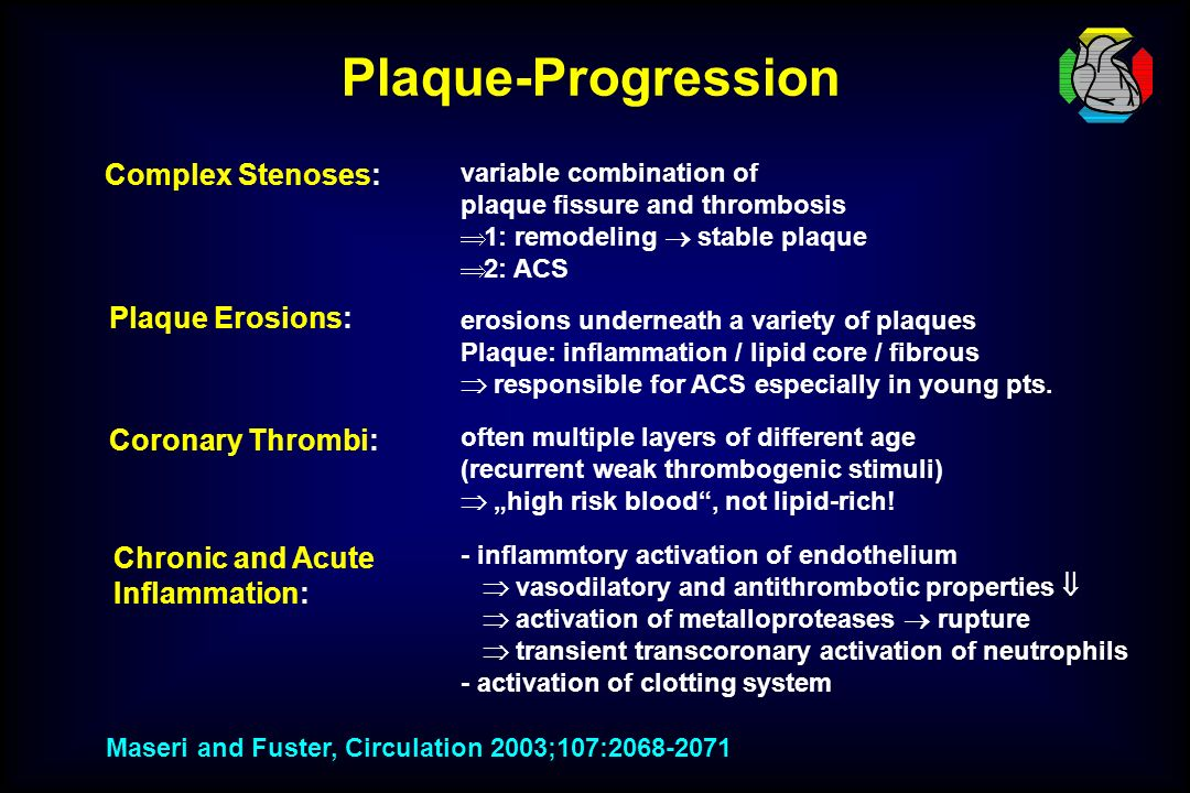 Plaque-Progression Complex Stenoses: Plaque Erosions: