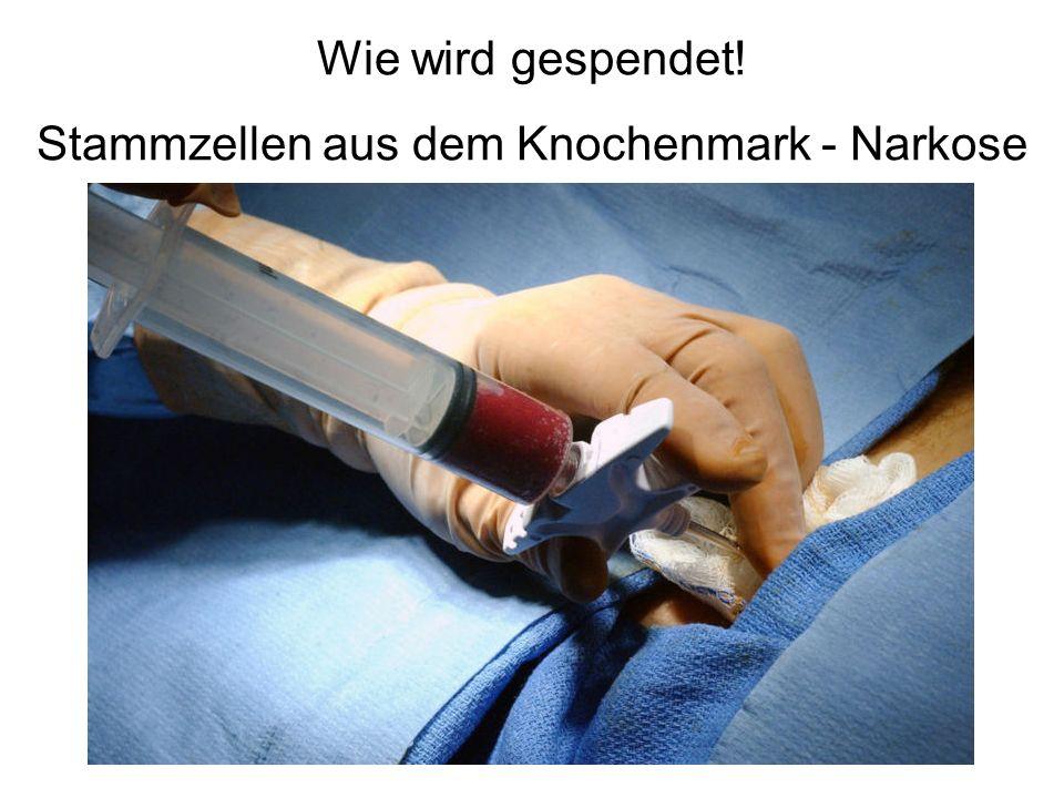 Stammzellen aus dem Knochenmark - Narkose