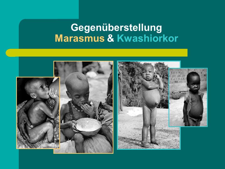 Gegenüberstellung Marasmus & Kwashiorkor