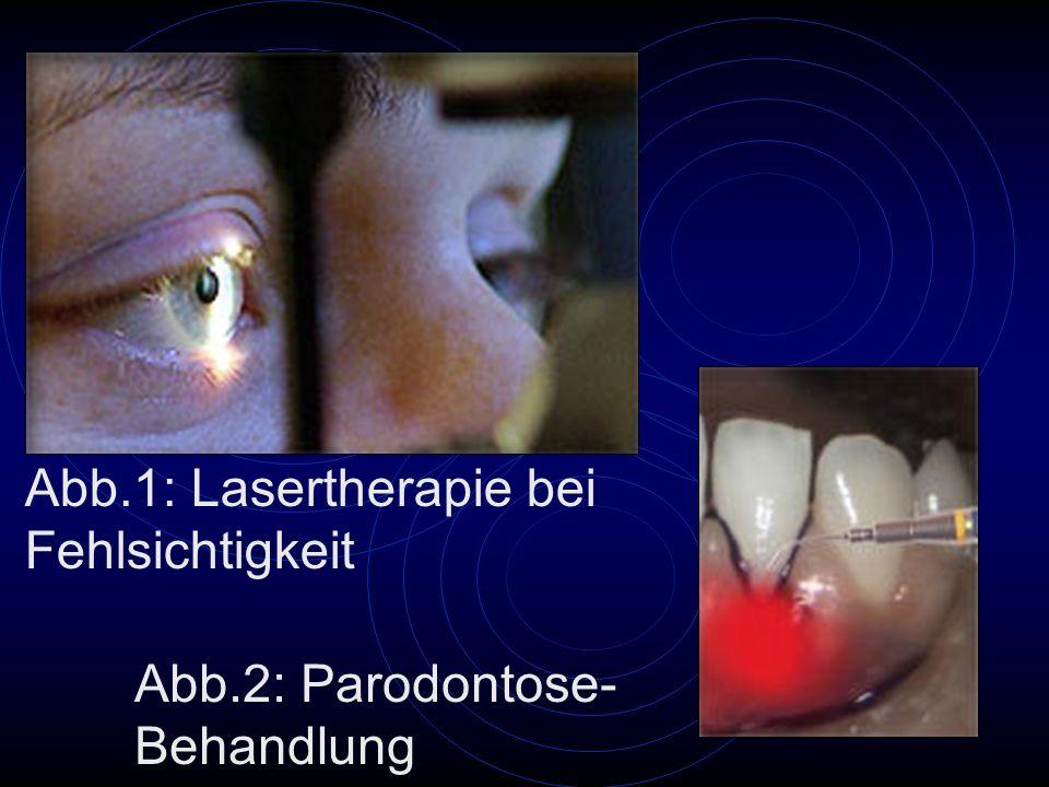 Abb.1: Lasertherapie bei Fehlsichtigkeit