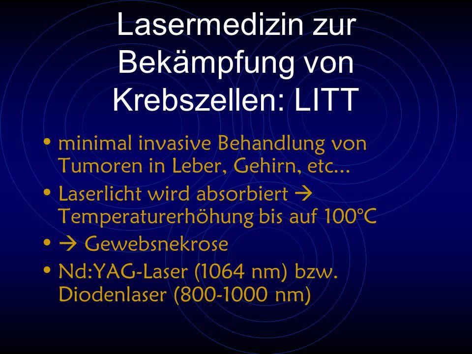 Lasermedizin zur Bekämpfung von Krebszellen: LITT