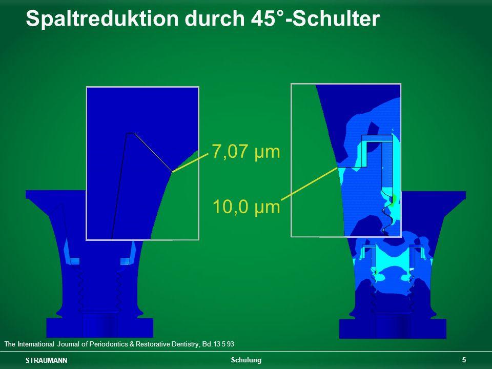 Spaltreduktion durch 45°-Schulter