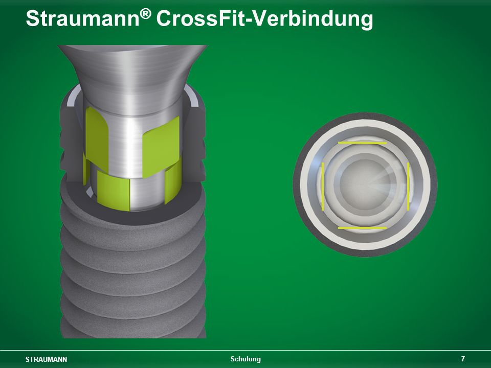 Straumann® CrossFit-Verbindung