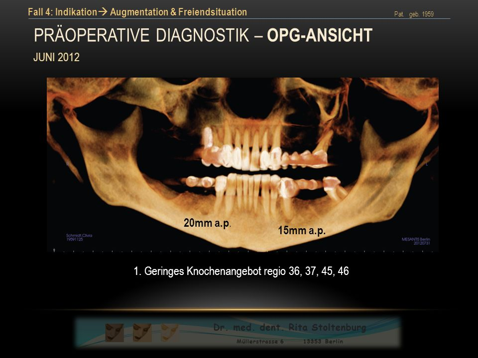 Präoperative diagnostik – opg-Ansicht