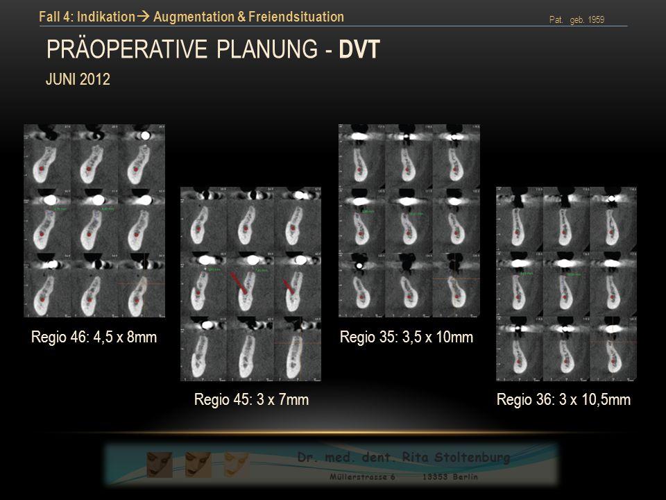 Präoperative planung – dvt (cross section)