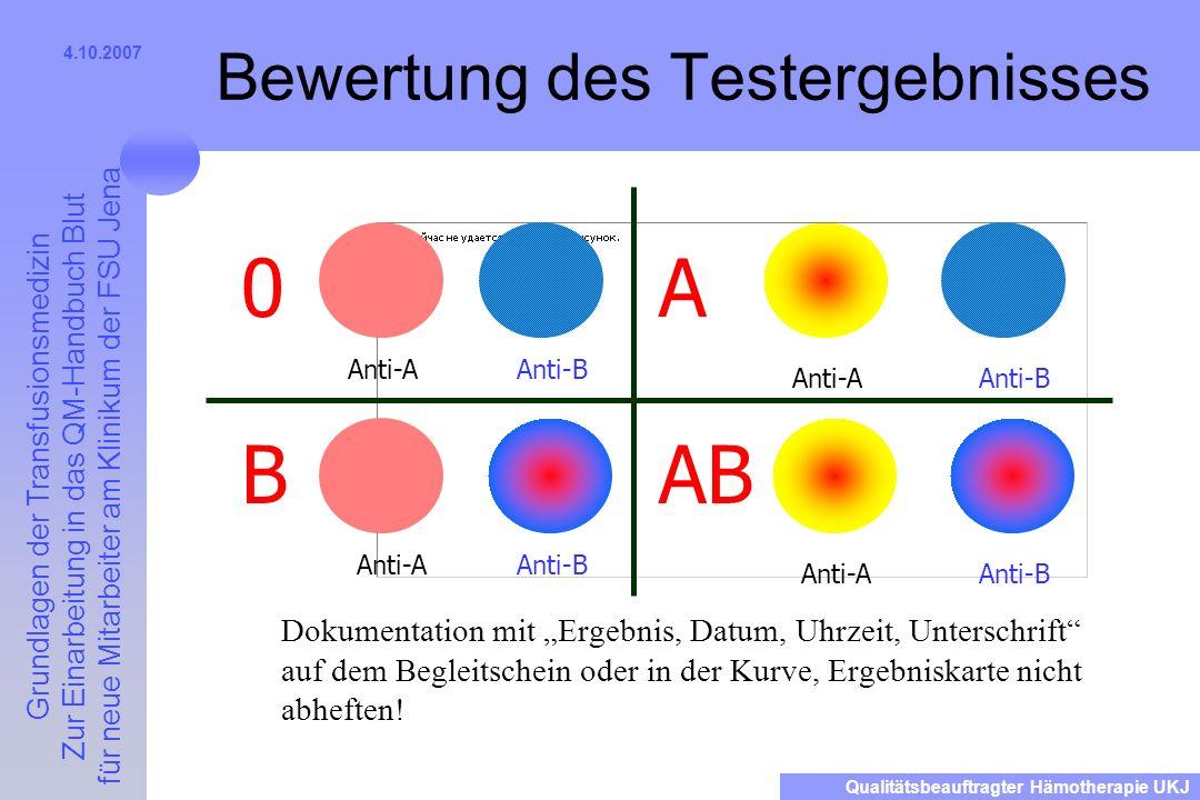 Bewertung des Testergebnisses