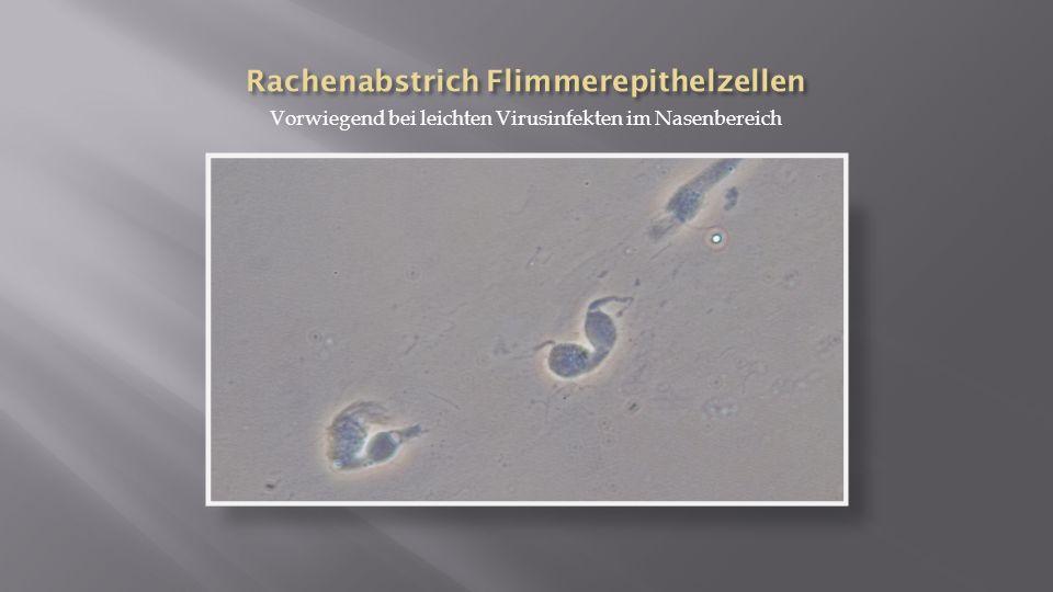 Rachenabstrich Flimmerepithelzellen