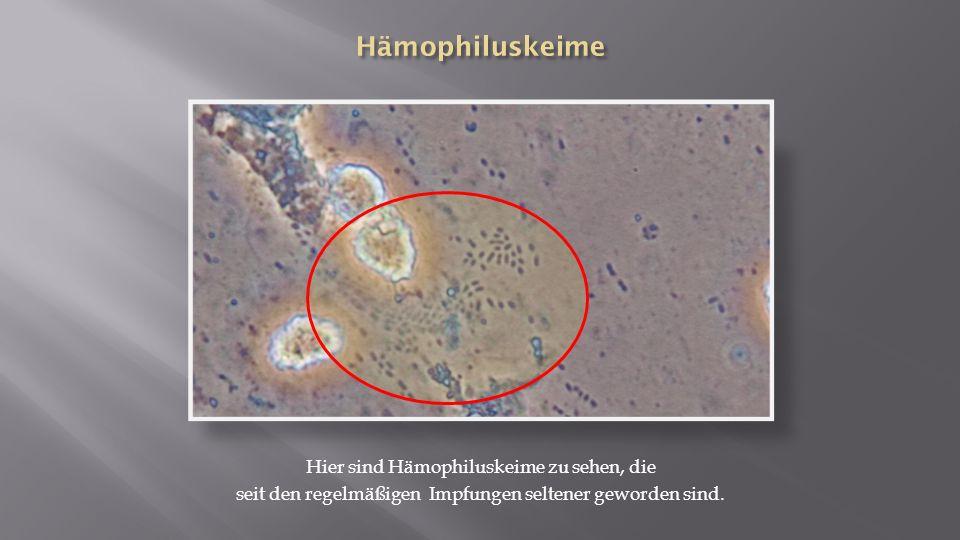 Hämophiluskeime Hier sind Hämophiluskeime zu sehen, die