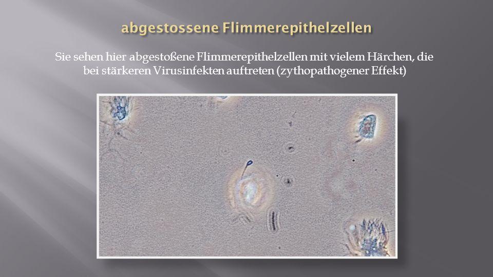abgestossene Flimmerepithelzellen