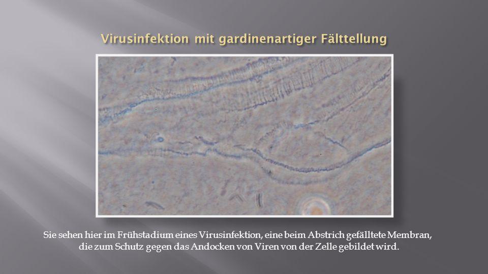 Virusinfektion mit gardinenartiger Fälttellung