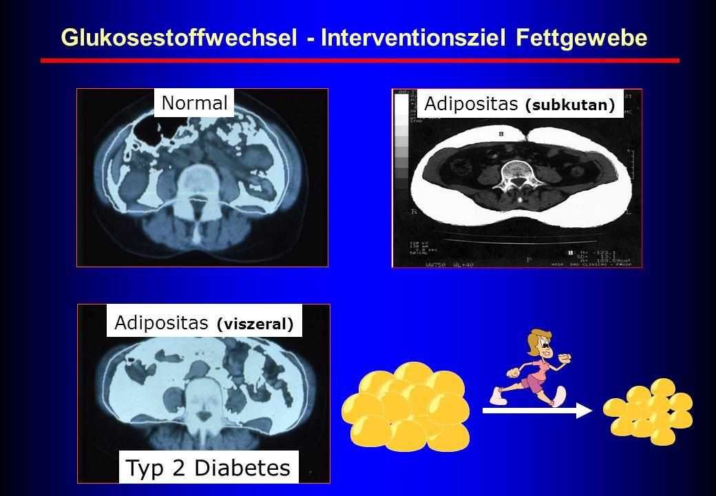 Glukosestoffwechsel - Interventionsziel Fettgewebe