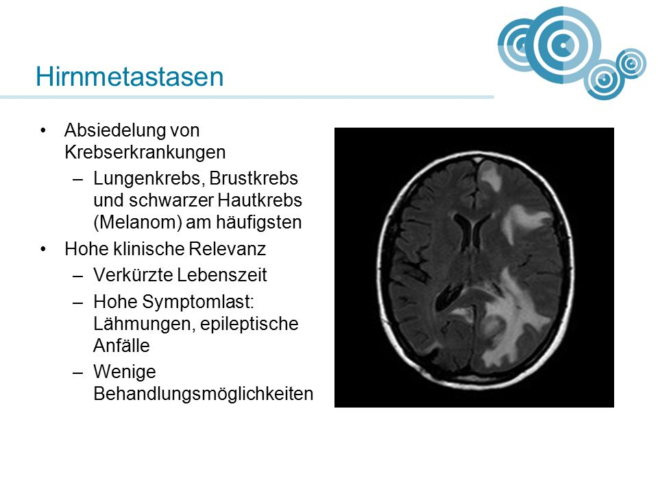 Hirnmetastasen Absiedelung von Krebserkrankungen