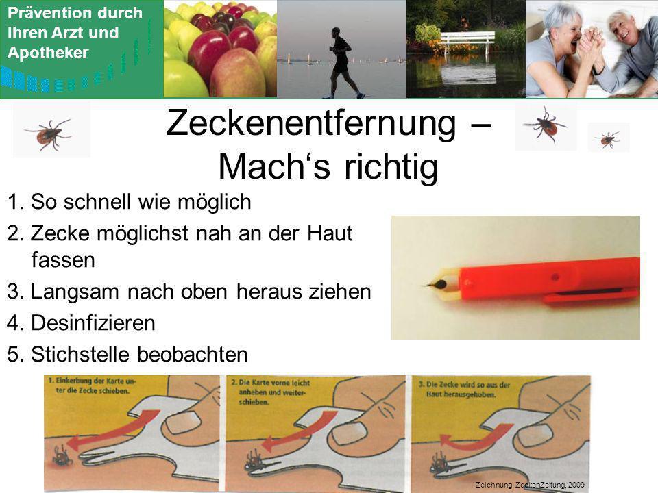 Zeckenentfernung – Mach's richtig