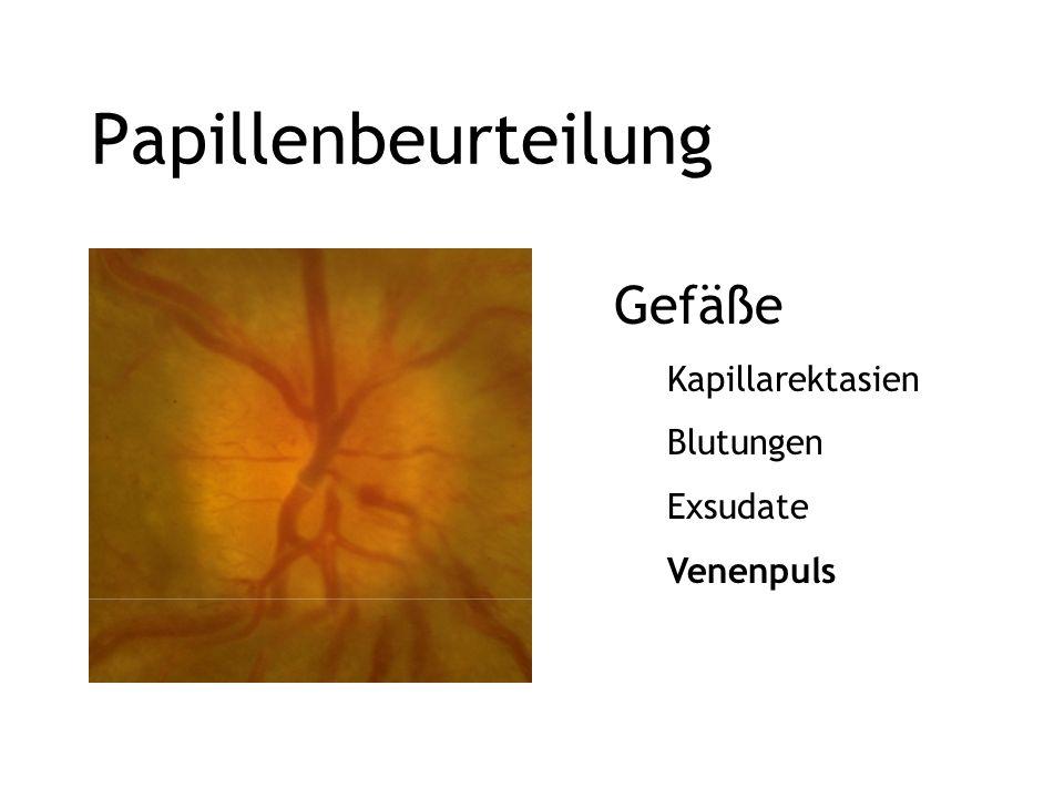 Papillenbeurteilung Gefäße Kapillarektasien Blutungen Exsudate