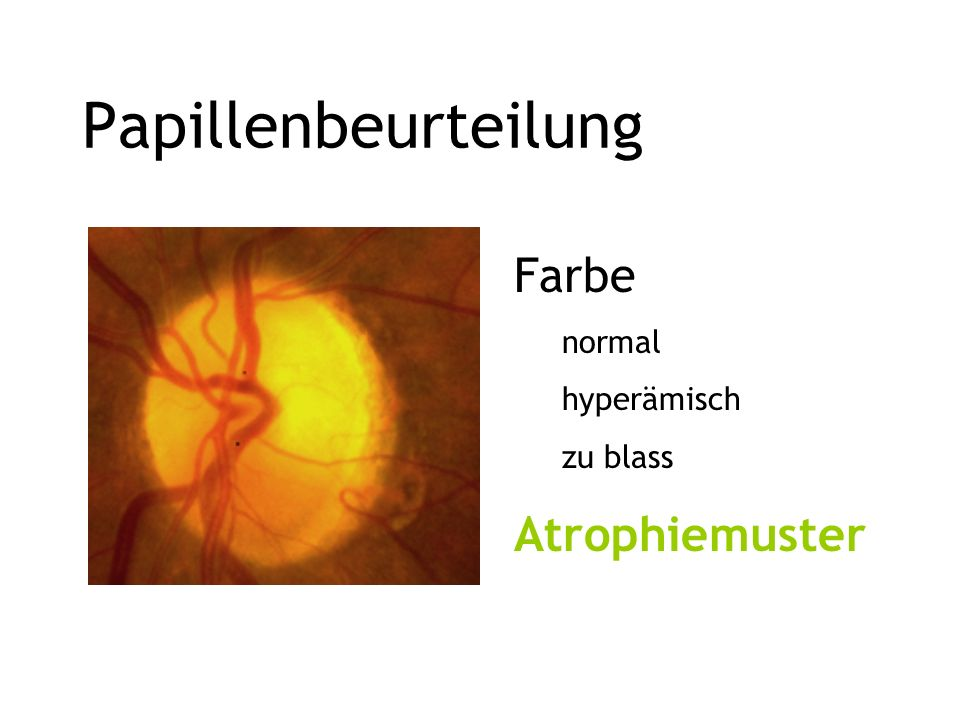 Papillenbeurteilung Farbe normal hyperämisch zu blass Atrophiemuster
