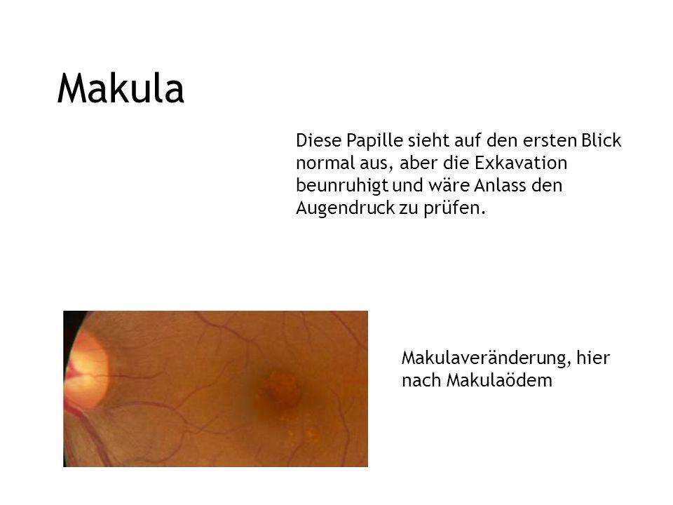 Makula Diese Papille sieht auf den ersten Blick normal aus, aber die Exkavation beunruhigt und wäre Anlass den Augendruck zu prüfen.