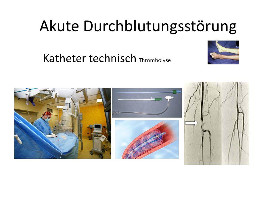 Akute Durchblutungsstörung