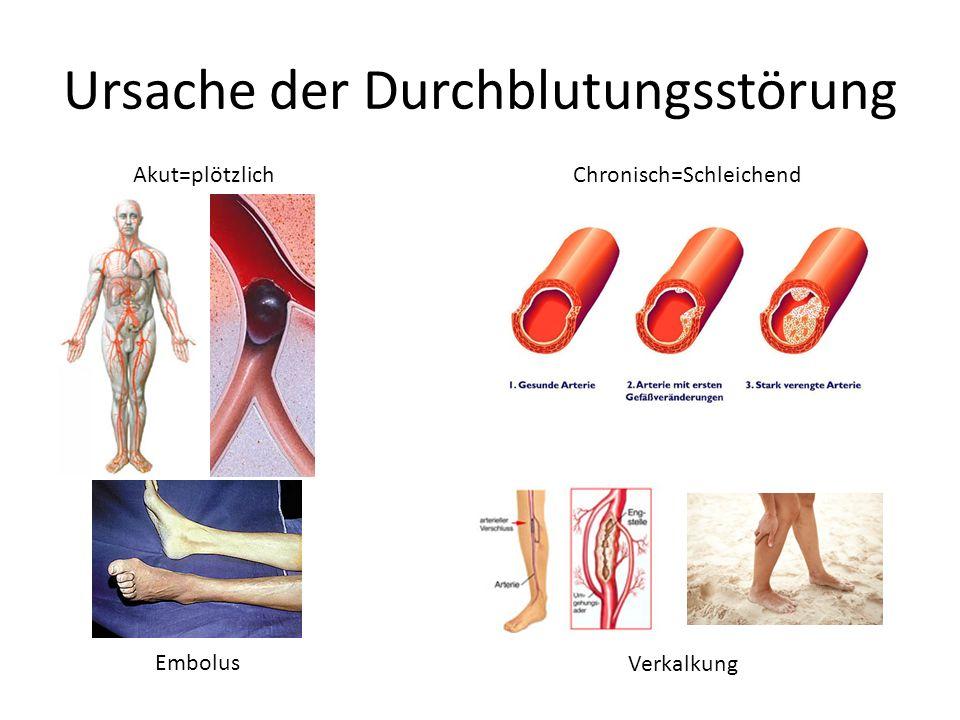 Ursache der Durchblutungsstörung