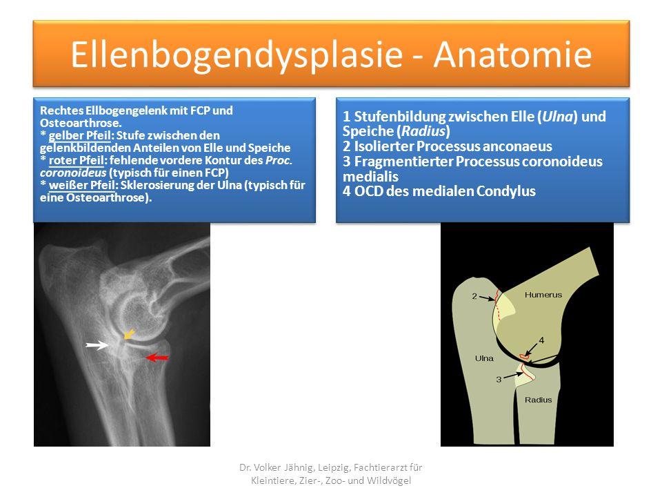 Ellenbogendysplasie - Anatomie
