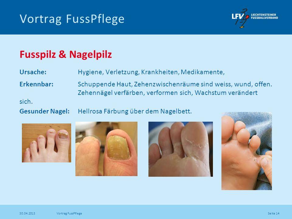 Vortrag FussPflege Fusspilz & Nagelpilz