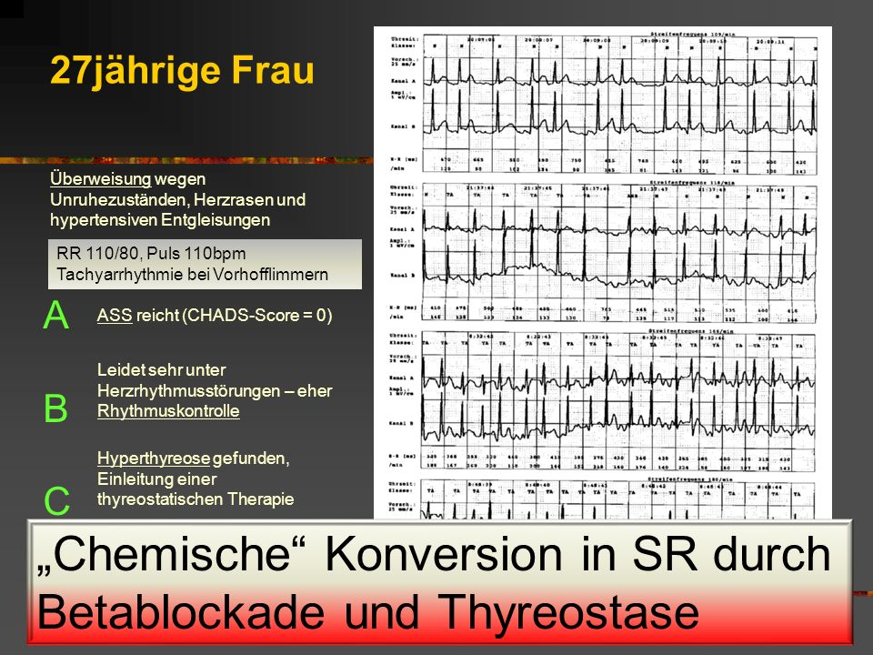 """""""Chemische Konversion in SR durch Betablockade und Thyreostase"""