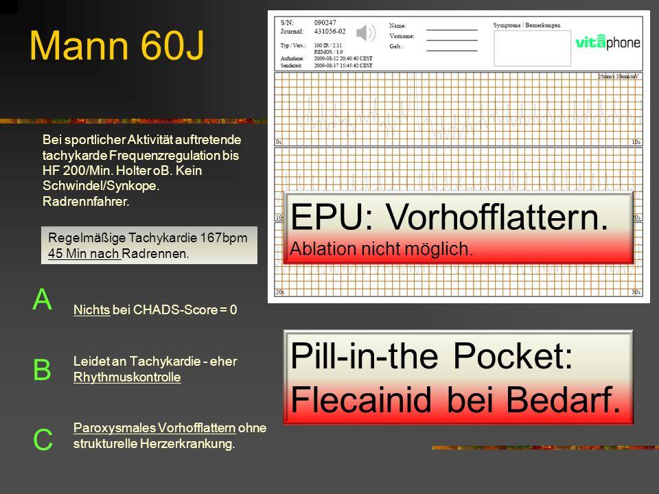 Mann 60J EPU: Vorhofflattern.