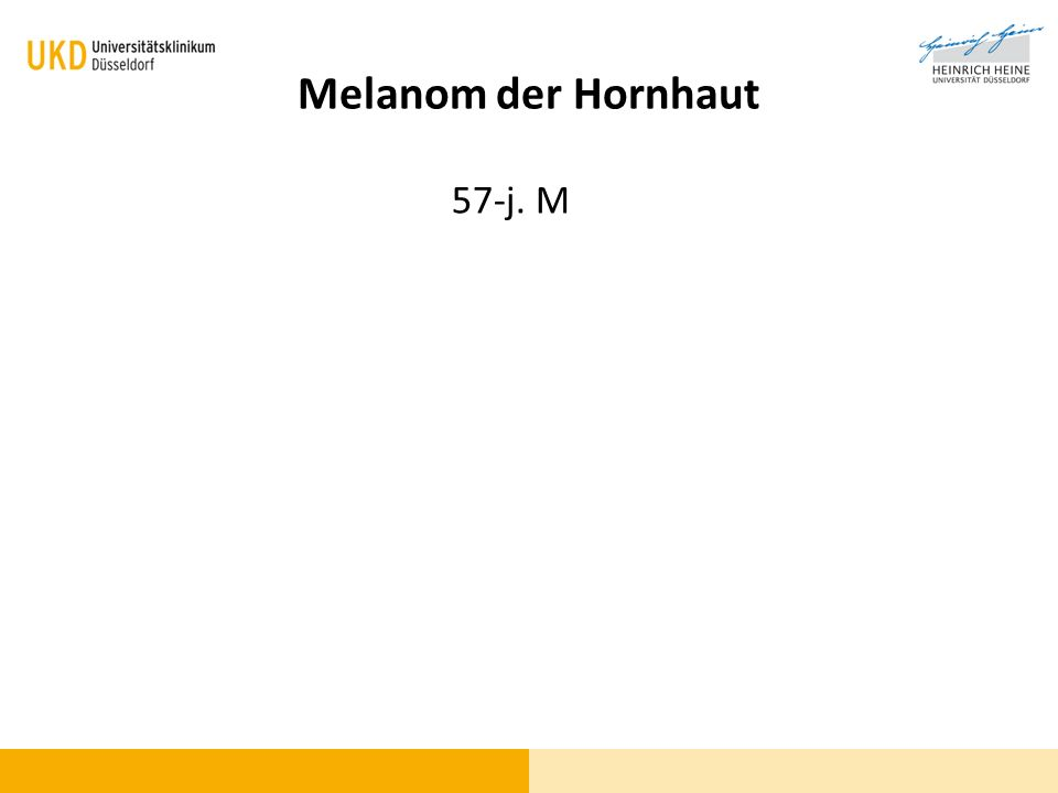Melanom der Hornhaut 57-j. M