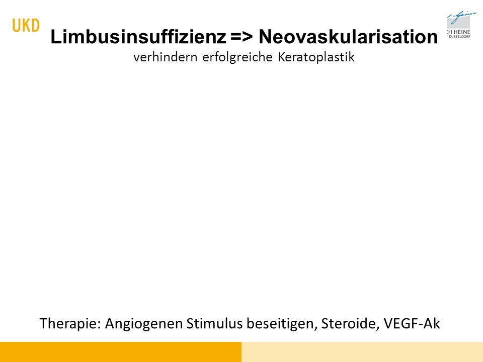 Therapie: Angiogenen Stimulus beseitigen, Steroide, VEGF-Ak