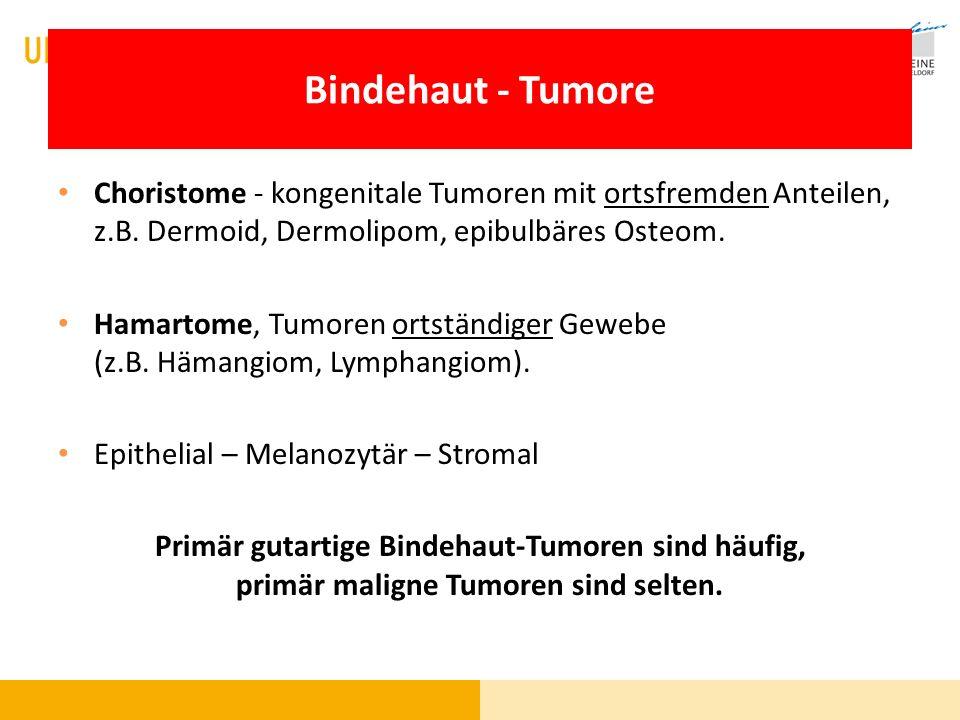 Bindehaut - Tumore Choristome - kongenitale Tumoren mit ortsfremden Anteilen, z.B. Dermoid, Dermolipom, epibulbäres Osteom.
