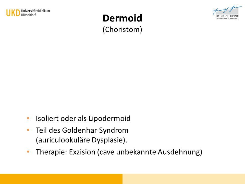 Dermoid (Choristom) Isoliert oder als Lipodermoid