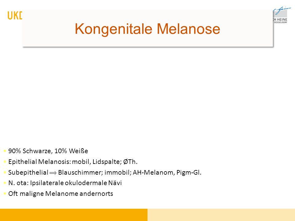 Kongenitale Melanose 90% Schwarze, 10% Weiße