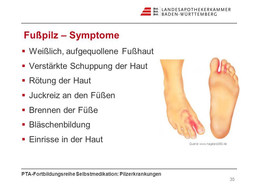 Fußpilz – Symptome Weißlich, aufgequollene Fußhaut