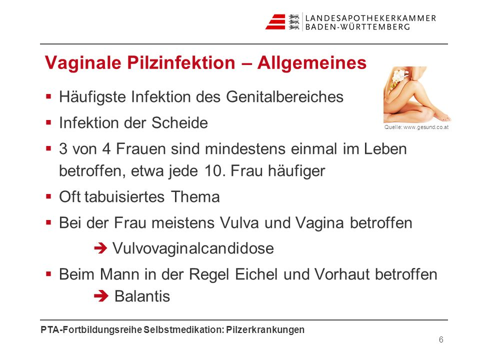 Vaginale Pilzinfektion – Allgemeines