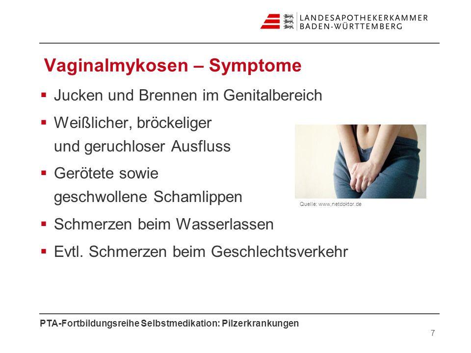 Vaginalmykosen – Symptome