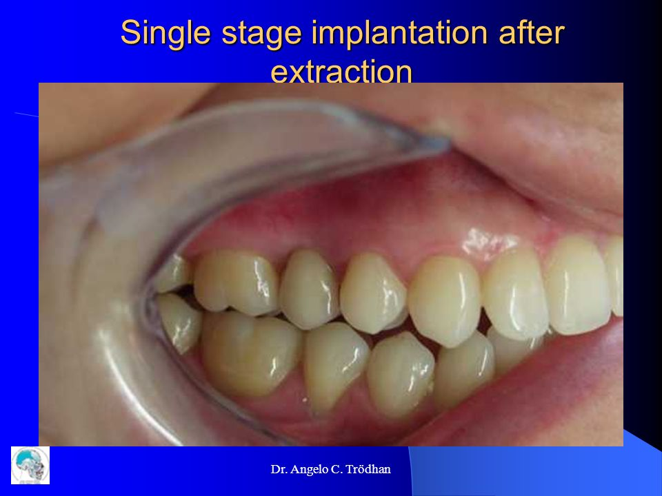 Single stage implantation after extraction