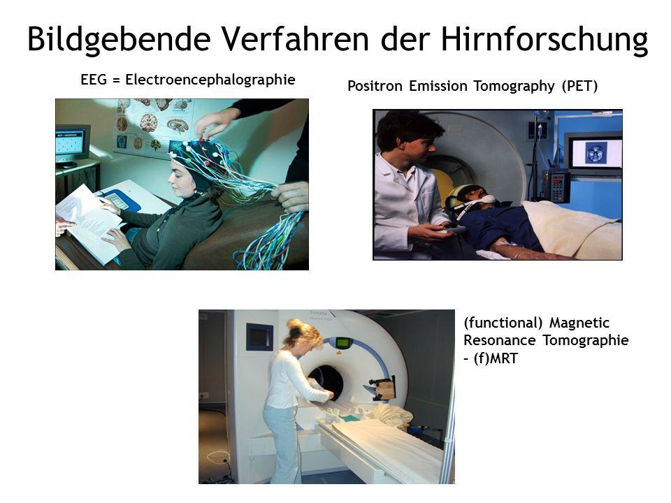 Bildgebende Verfahren der Hirnforschung