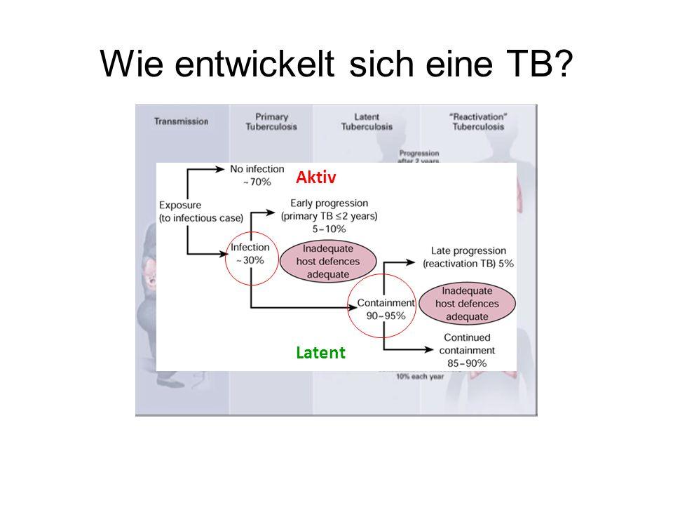 Wie entwickelt sich eine TB