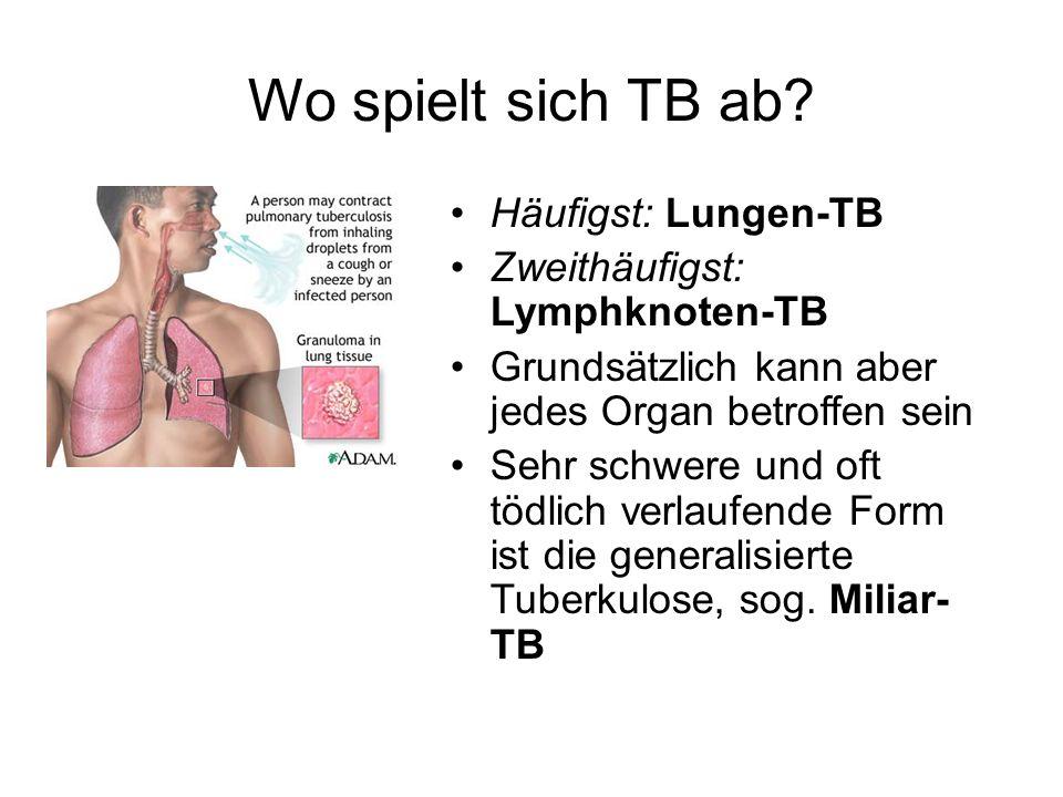 Wo spielt sich TB ab Häufigst: Lungen-TB
