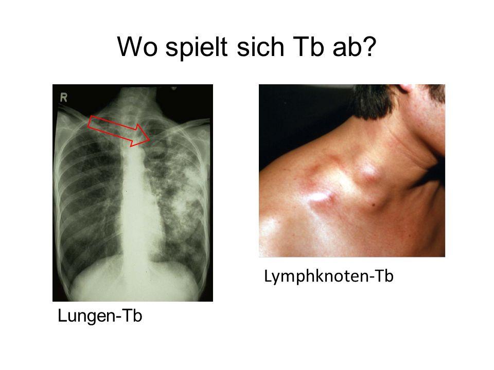 Wo spielt sich Tb ab Lymphknoten-Tb Lungen-Tb