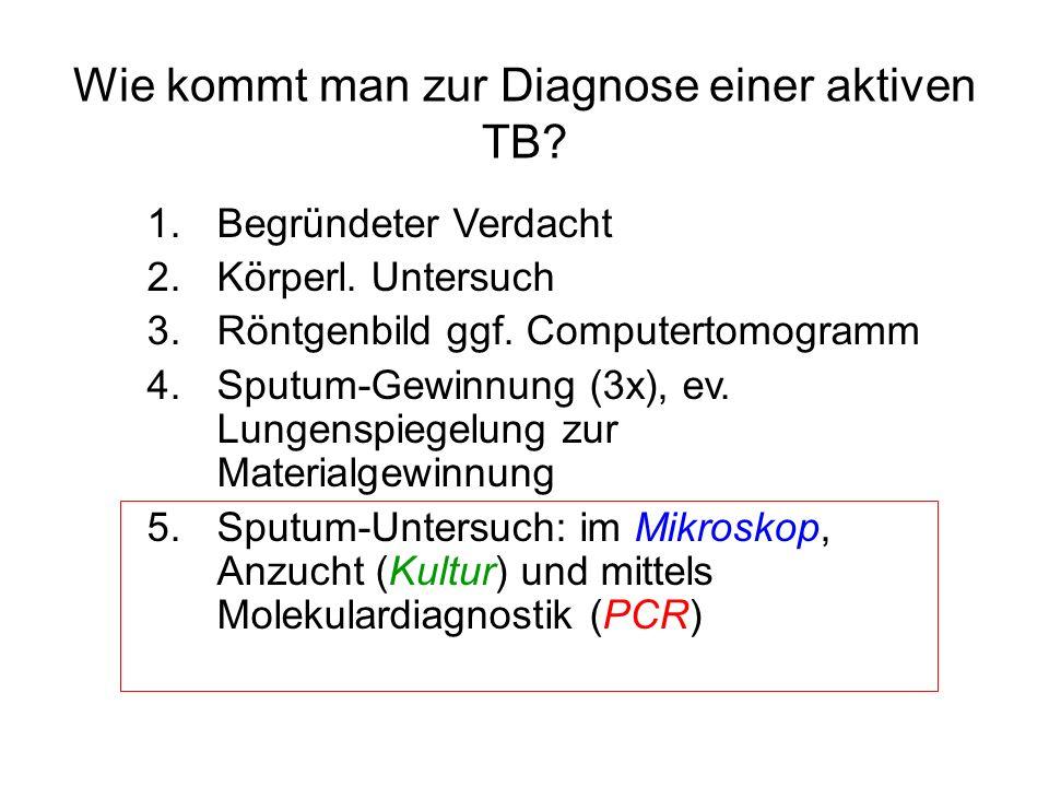 Wie kommt man zur Diagnose einer aktiven TB